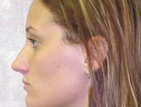 Facial Surgery Case 105 - Rhinoplasty - Before