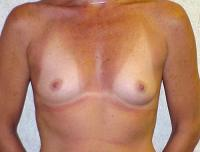 Breast Surgery Case 106 - Breast Augmentation - Before