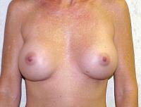 Breast Surgery Case 113 - Breast Implant Revision - Before