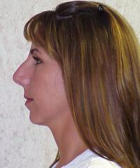 Facial Surgery Case 120 - Rhinoplasty - Before