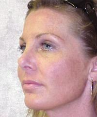 Facial Surgery Case 135 - Rhinoplasty - After