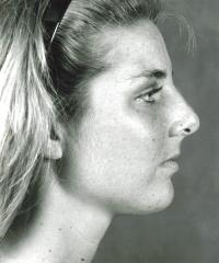 Facial Surgery Case 135 - Rhinoplasty - Before